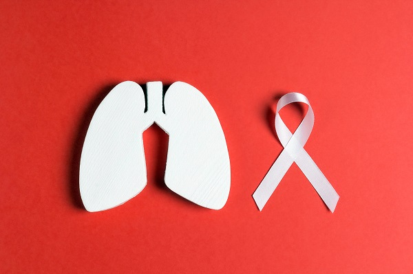 Oncology Tips For Avoiding Lung Cancer